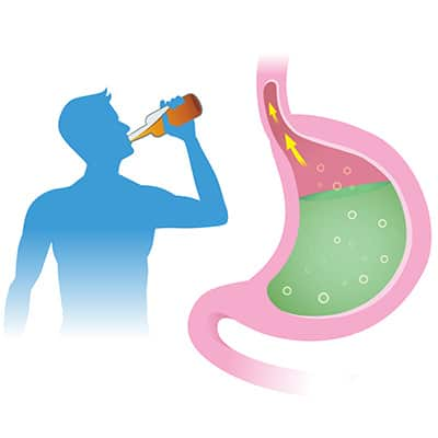 Alcohol and Leaky Gut