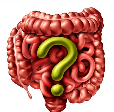 GI Tract with Large yellow question mark on it. having IBS problems
